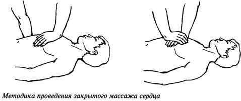 Закрытый массаж сердца