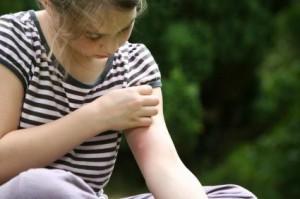 Что делать, когда вас ужалило насекомое?