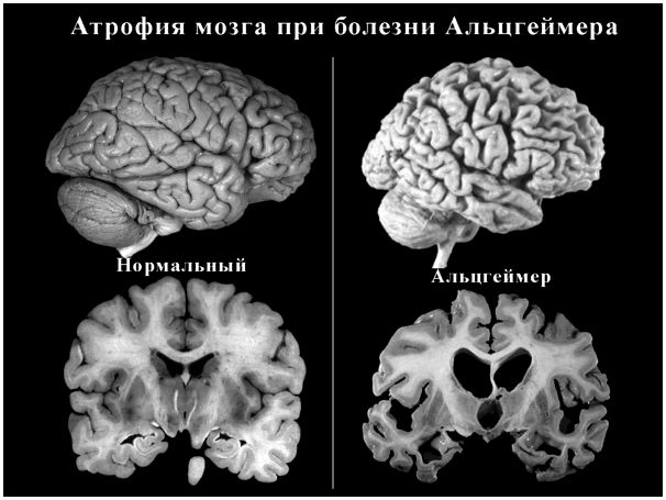 Употребление рыбы снижает риск болезни Альцгеймера