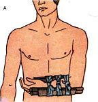 Первая медицинская само и взаимопомощь при кровотечениях, переломах и вывихах в условиях автономного существования.