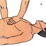 Первая само и взаимопомощь при ранении, ожогах, шоке, обмороке и остановке дыхания в условиях автономного существования.