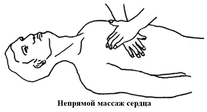 Восстановление проходимости дыхательных путей, искусственное дыхание, непрямой массаж сердца, особенности проведения.