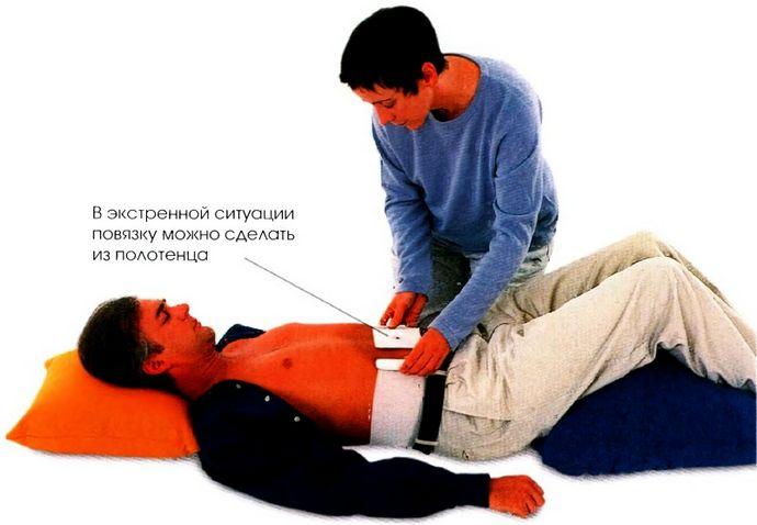 Травма брюшной полости, первая неотложная помощь, что делать если сквозь рану видны внутренние органы.