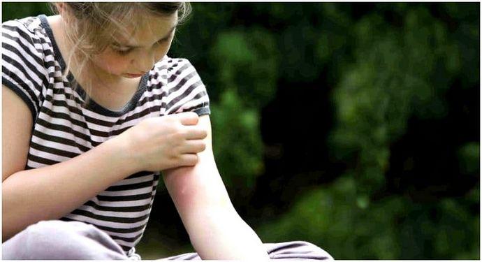 Сделай сам ловушку для комаров: мирно разбить лагерь без зуда