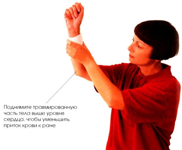 Кровотечение, что нужно делать при кровотечении, видимые признаки внутреннего кровотечения, кровотечение при инородном теле в ране, первая неотложная помощь.