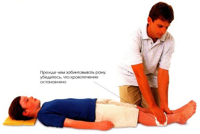 Что делать при порезе, глубокие и поверхностные порезы, остановка кровотечения и первая неотложная помощь.