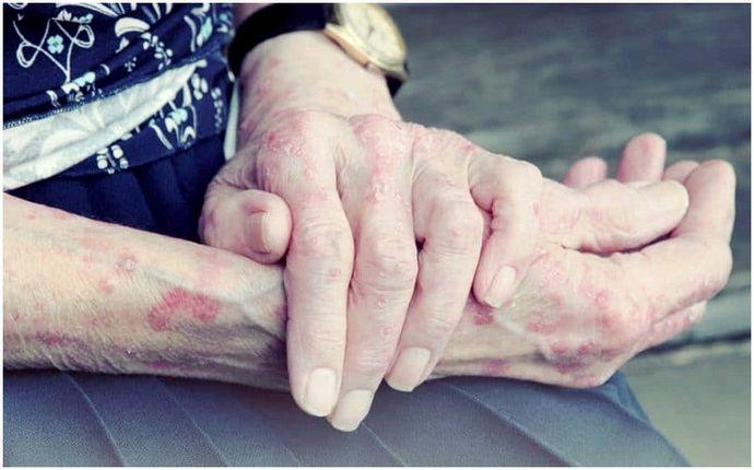 Как узнать, инфицирован ли порез: некоторые вещи должны знать о ранах