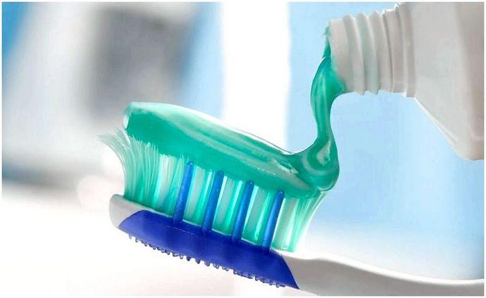 Домашние средства от зубной боли: как избавиться от боли и перестать страдать