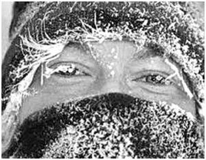 Тепловой и солнечный удары, обморожения и другие неприятности на охоте