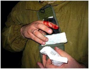 Кровотечения и ожоги во время охоты – первая помощь