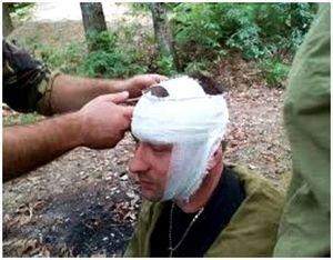 Как поступать охотнику в случае травмы