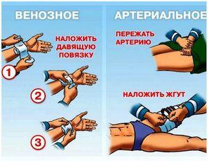 Первая помощь при огнестрельном ранении