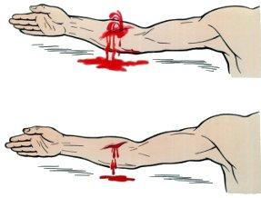 Типы повреждений (вена или артерия)